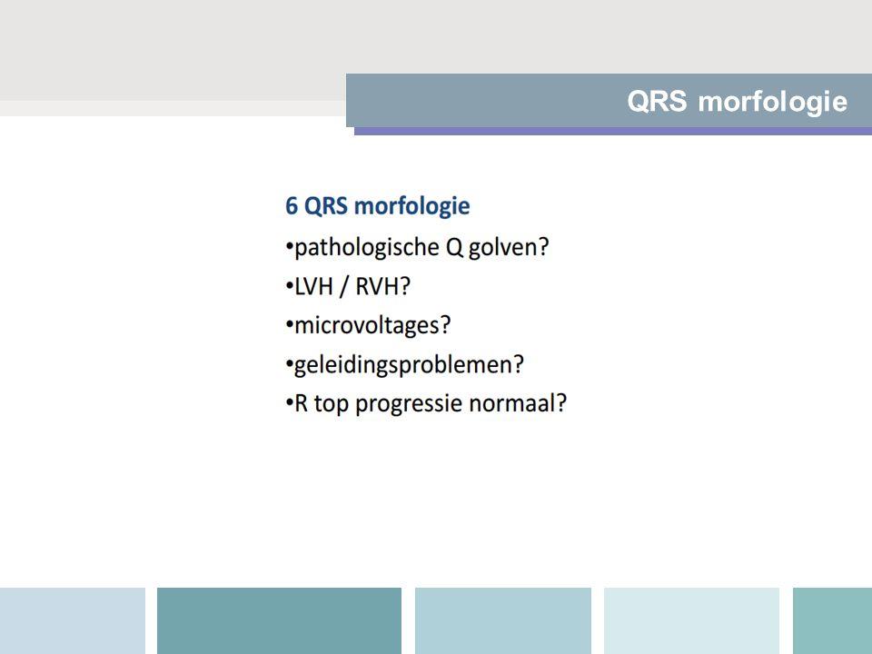 QRS morfologie