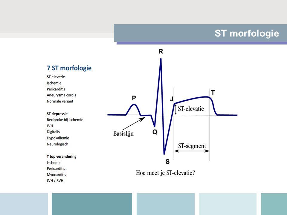 ST morfologie
