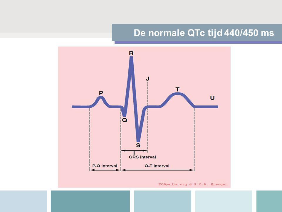 De normale QTc tijd 440/450 ms