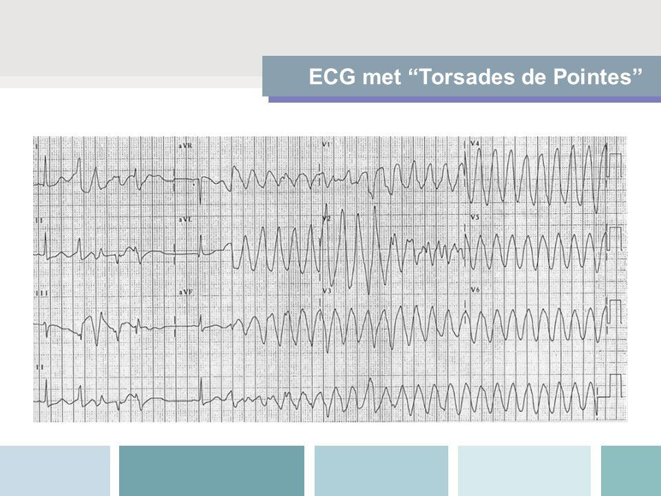 """ECG met """"Torsades de Pointes"""""""