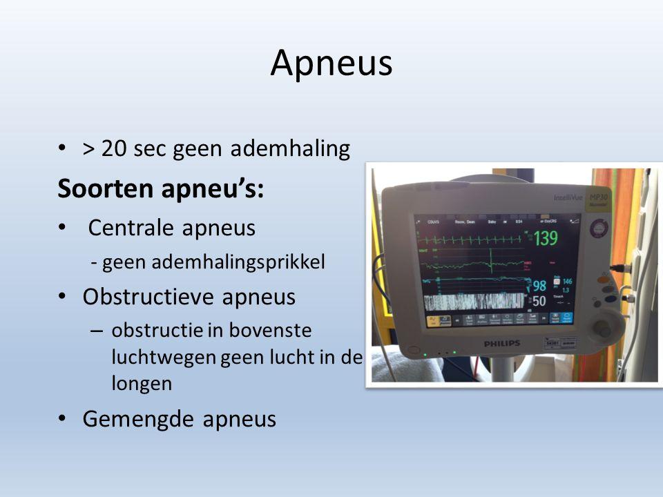 Apneus > 20 sec geen ademhaling Soorten apneu's: Centrale apneus - geen ademhalingsprikkel Obstructieve apneus – obstructie in bovenste luchtwegen geen lucht in de longen Gemengde apneus
