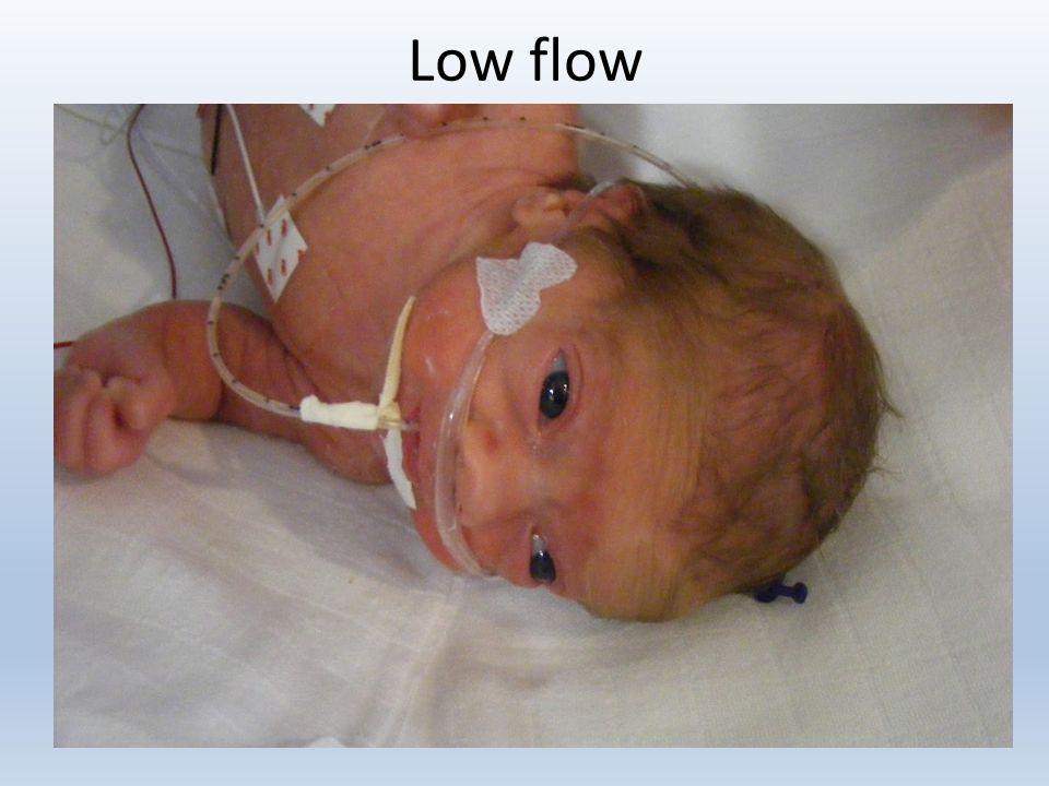 Low flow