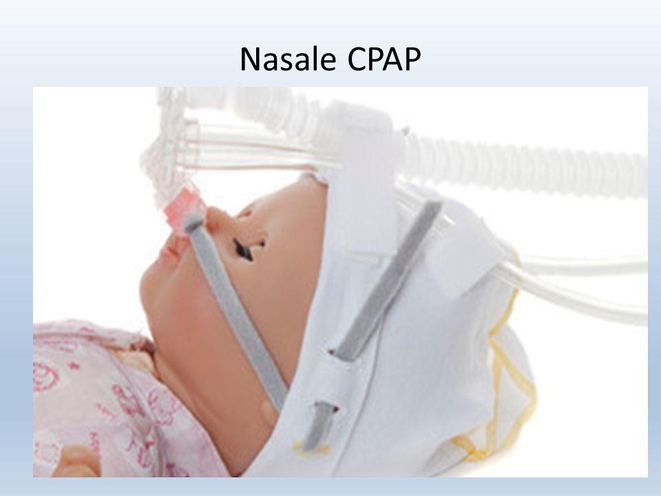 Nasale CPAP