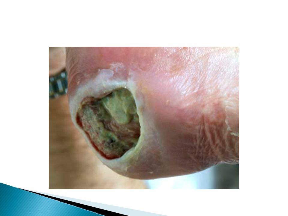  Decubitus zweren genezen vaak traag.