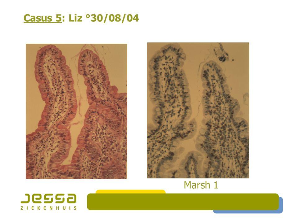 Casus 5: Liz °30/08/04 Marsh 1