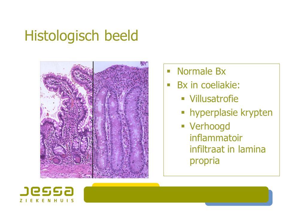Histologisch beeld  Normale Bx  Bx in coeliakie:  Villusatrofie  hyperplasie krypten  Verhoogd inflammatoir infiltraat in lamina propria