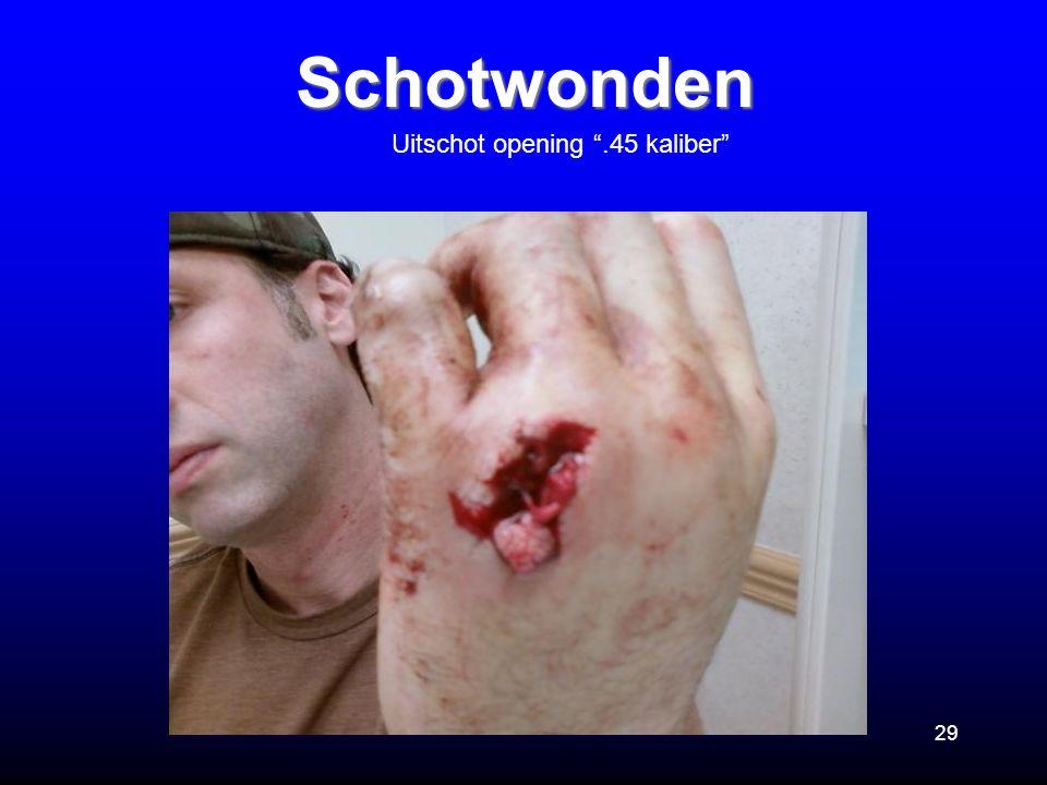 """29 Schotwonden Uitschot opening """".45 kaliber"""""""