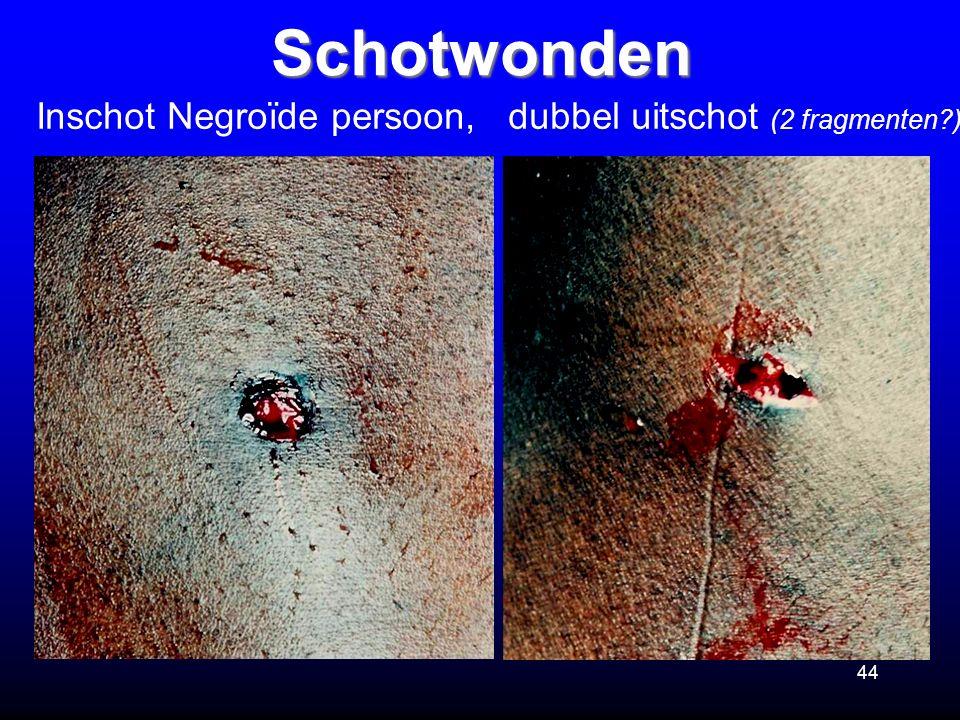 44Schotwonden Inschot Negroïde persoon, dubbel uitschot (2 fragmenten?)