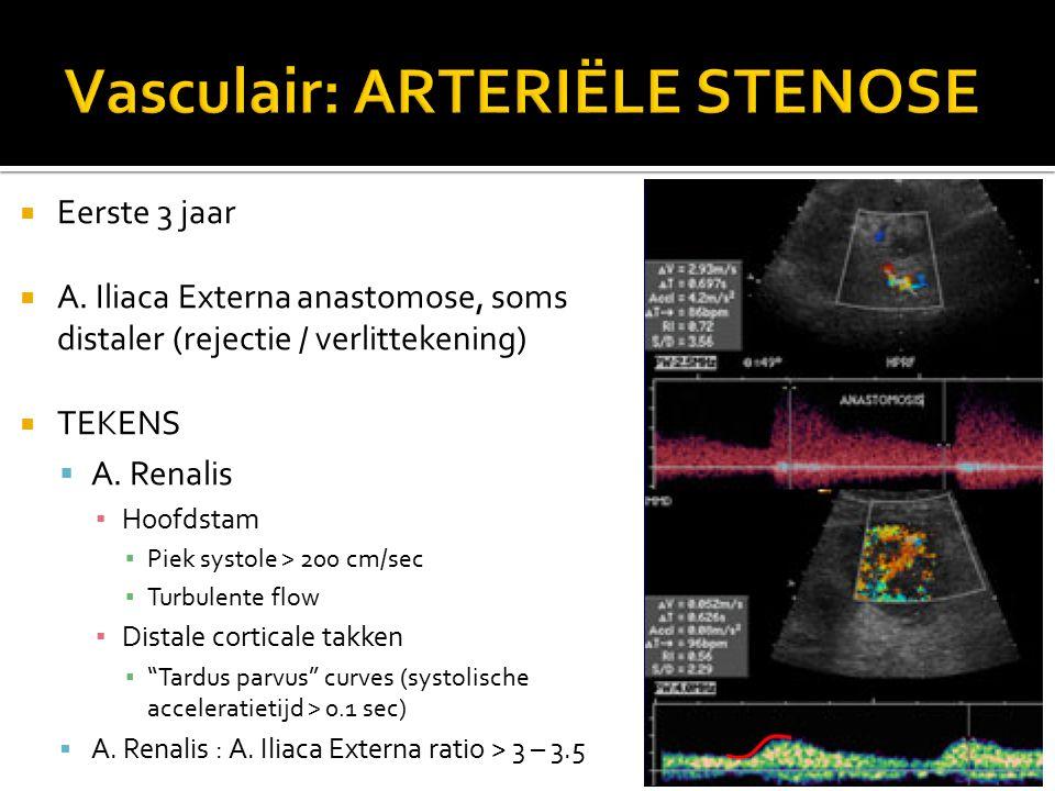  Eerste 3 jaar  A. Iliaca Externa anastomose, soms distaler (rejectie / verlittekening)  TEKENS  A. Renalis ▪ Hoofdstam ▪ Piek systole > 200 cm/se