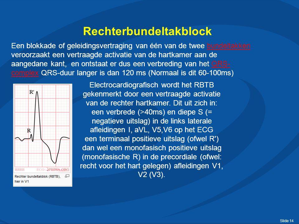 Slide 14 Rechterbundeltakblock Een blokkade of geleidingsvertraging van één van de twee bundeltakken veroorzaakt een vertraagde activatie van de hartkamer aan de aangedane kant, en ontstaat er dus een verbreding van het QRS- complex QRS-duur langer is dan 120 ms (Normaal is dit 60-100ms)bundeltakkenQRS- complex Electrocardiografisch wordt het RBTB gekenmerkt door een vertraagde activatie van de rechter hartkamer.
