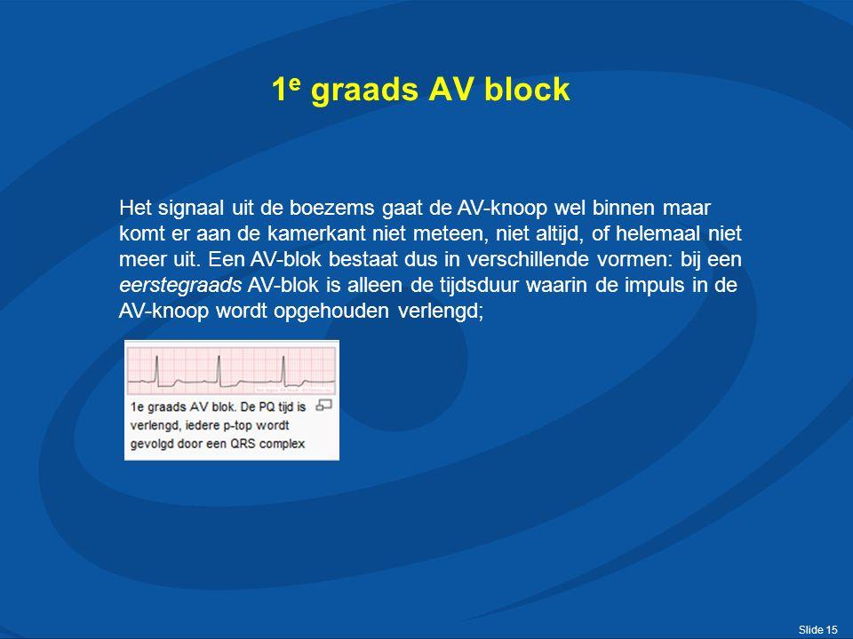 Slide 15 1 e graads AV block Het signaal uit de boezems gaat de AV-knoop wel binnen maar komt er aan de kamerkant niet meteen, niet altijd, of helemaal niet meer uit.