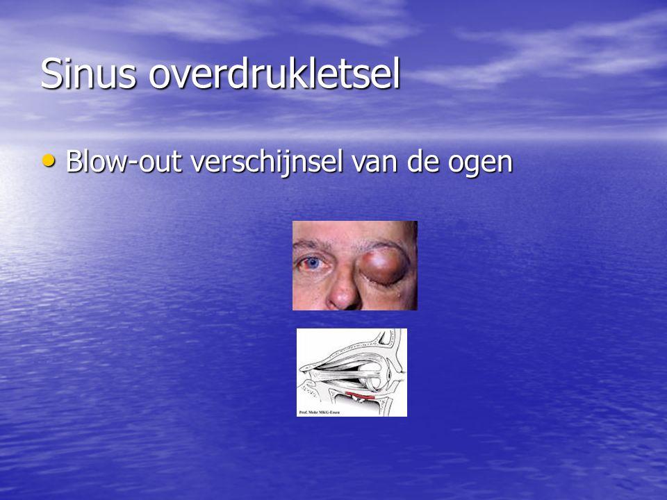 Sinus overdrukletsel Blow-out verschijnsel van de ogen Blow-out verschijnsel van de ogen