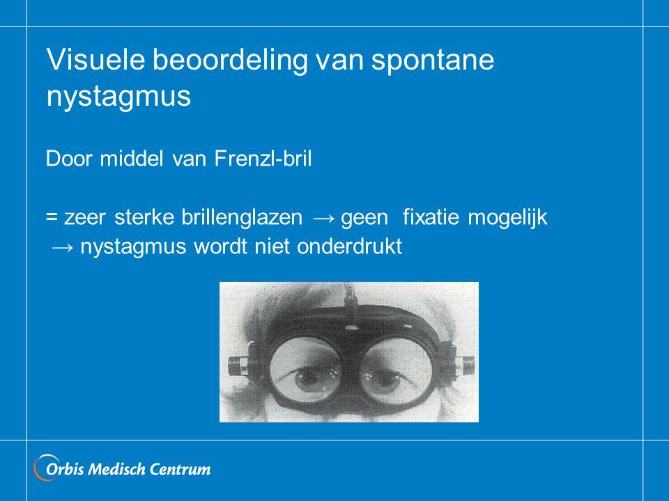 Visuele beoordeling van spontane nystagmus Door middel van Frenzl-bril = zeer sterke brillenglazen → geen fixatie mogelijk → nystagmus wordt niet onde