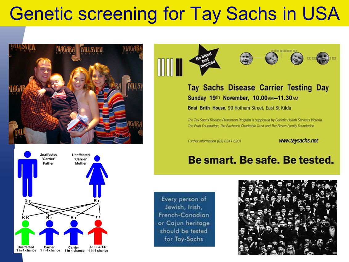 30 Genetic screening for Tay Sachs in USA