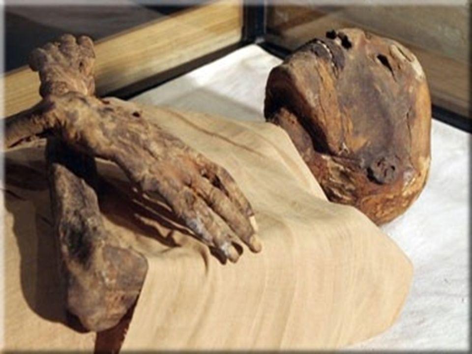 mummiesGemummificeerd.Spullen tussen het verband.