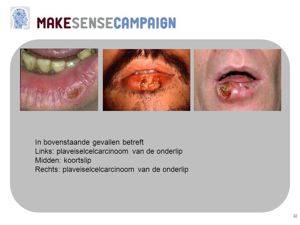 22 In bovenstaande gevallen betreft Links: plaveiselcelcarcinoom van de onderlip Midden: koortslip Rechts: plaveiselcelcarcinoom van de onderlip