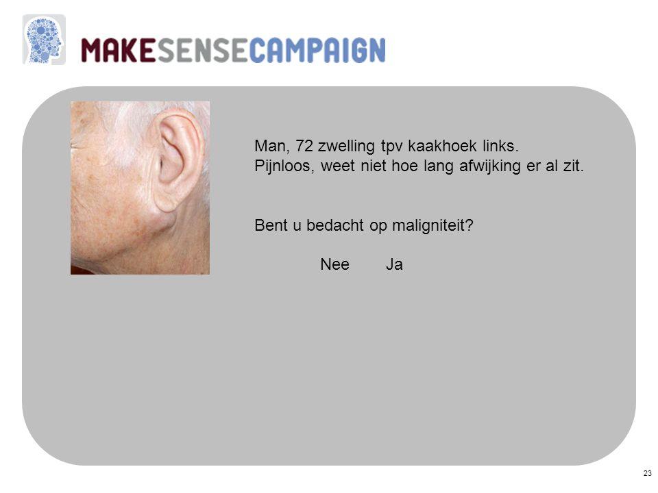 23 Man, 72 zwelling tpv kaakhoek links. Pijnloos, weet niet hoe lang afwijking er al zit. Bent u bedacht op maligniteit? Nee Ja