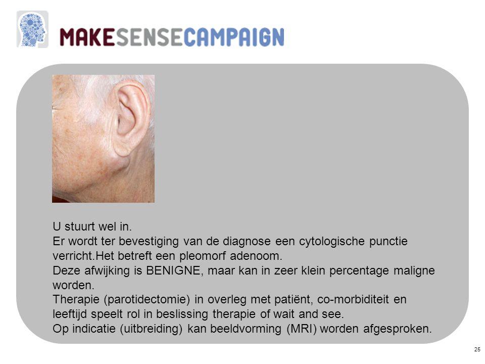 25 U stuurt wel in. Er wordt ter bevestiging van de diagnose een cytologische punctie verricht.Het betreft een pleomorf adenoom. Deze afwijking is BEN