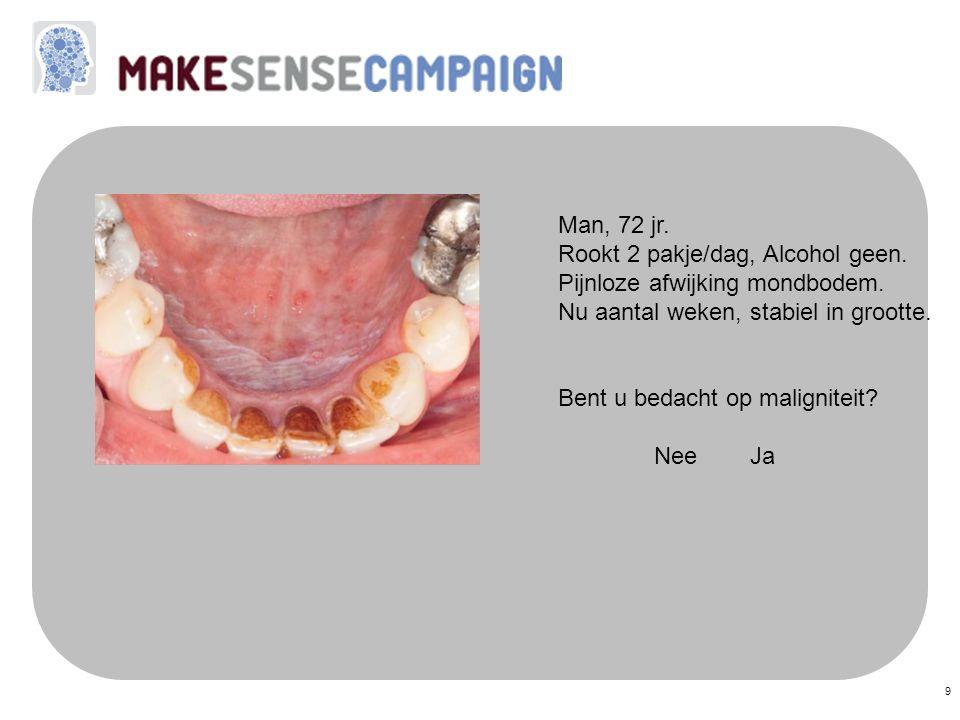 9 Man, 72 jr. Rookt 2 pakje/dag, Alcohol geen. Pijnloze afwijking mondbodem. Nu aantal weken, stabiel in grootte. Bent u bedacht op maligniteit? NeeJa