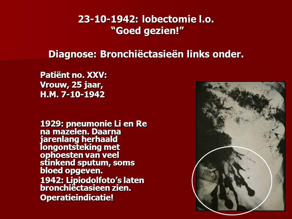 """23-10-1942: lobectomie l.o. """"Goed gezien!"""" Diagnose: Bronchiëctasieën links onder. Patiënt no. XXV: Vrouw, 25 jaar, H.M. 7-10-1942 1929: pneumonie Li"""
