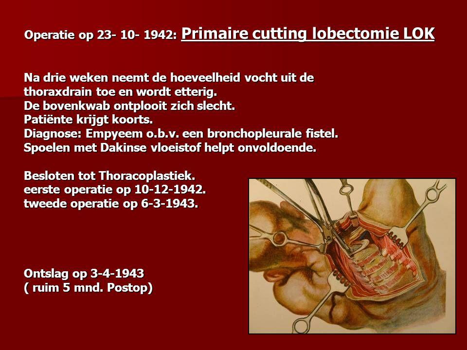 Operatie op 23- 10- 1942: Primaire cutting lobectomie LOK Operatie op 23- 10- 1942: Primaire cutting lobectomie LOK Na drie weken neemt de hoeveelheid