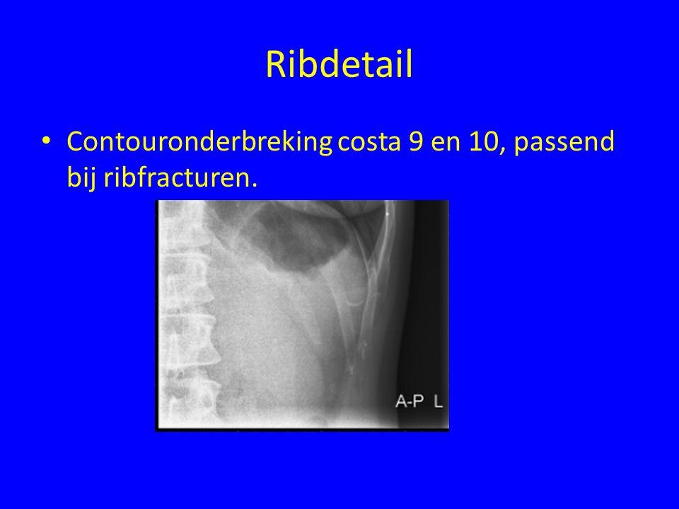 Ribdetail Contouronderbreking costa 9 en 10, passend bij ribfracturen.