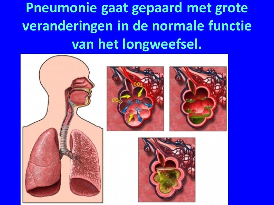 Pneumonie gaat gepaard met grote veranderingen in de normale functie van het longweefsel.