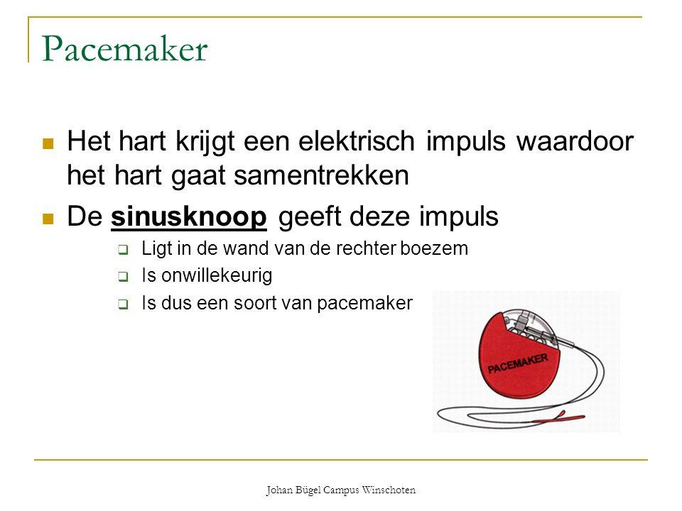 Johan Bügel Campus Winschoten Pacemaker Het hart krijgt een elektrisch impuls waardoor het hart gaat samentrekken De sinusknoop geeft deze impuls  Li