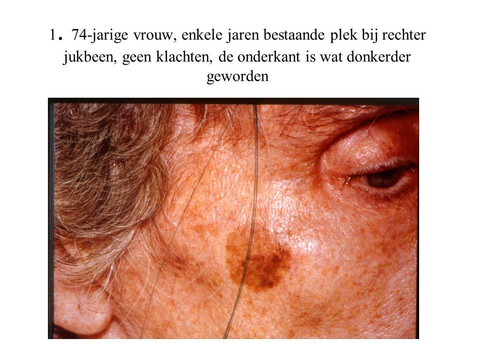 1. 74-jarige vrouw, enkele jaren bestaande plek bij rechter jukbeen, geen klachten, de onderkant is wat donkerder geworden