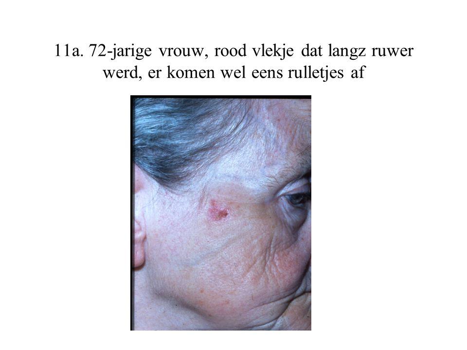11a. 72-jarige vrouw, rood vlekje dat langz ruwer werd, er komen wel eens rulletjes af