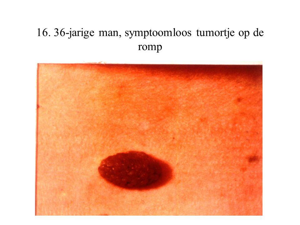 16. 36-jarige man, symptoomloos tumortje op de romp