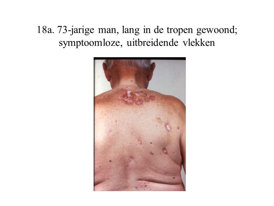 18a. 73-jarige man, lang in de tropen gewoond; symptoomloze, uitbreidende vlekken