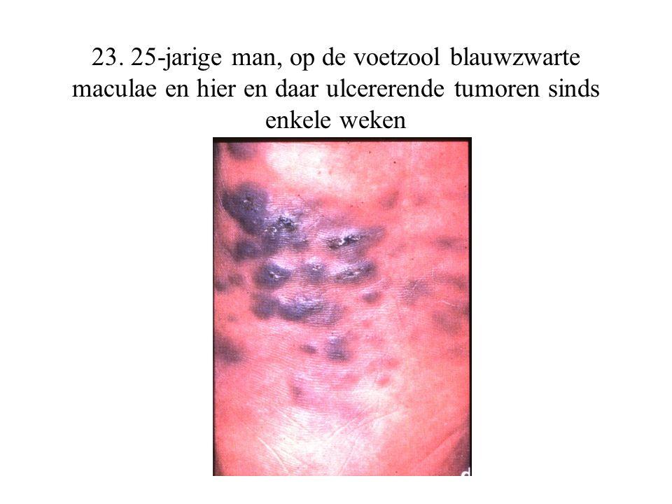 23. 25-jarige man, op de voetzool blauwzwarte maculae en hier en daar ulcererende tumoren sinds enkele weken