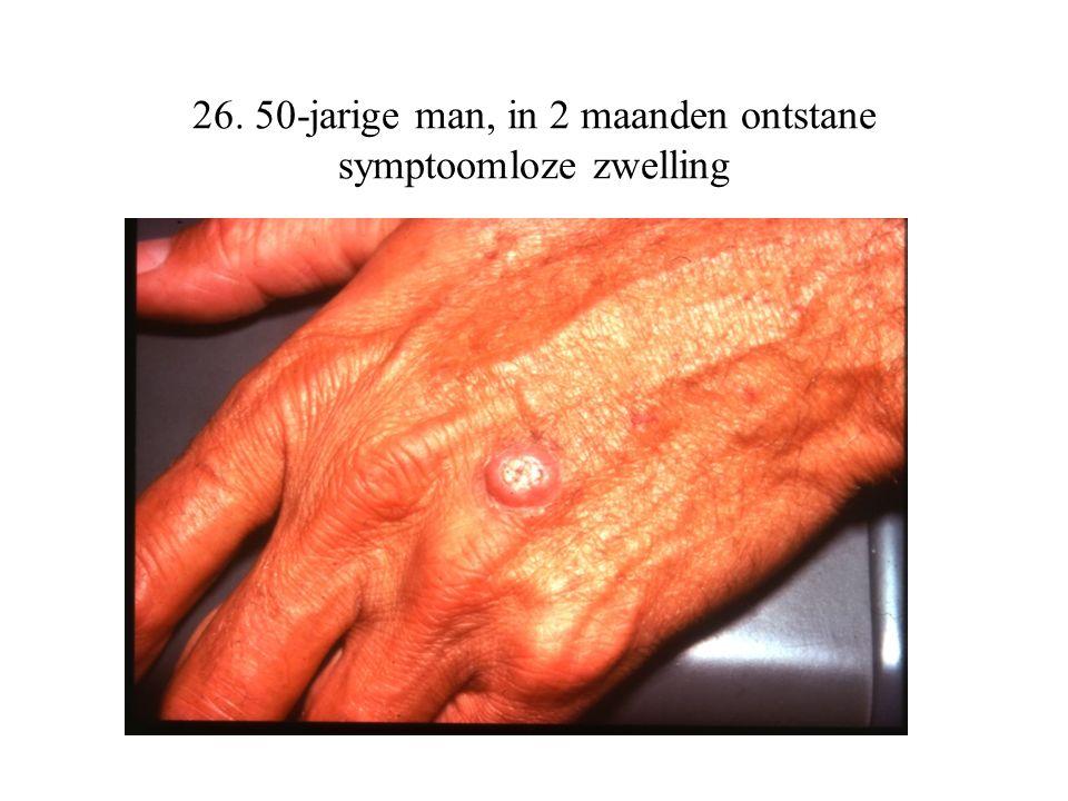 26. 50-jarige man, in 2 maanden ontstane symptoomloze zwelling