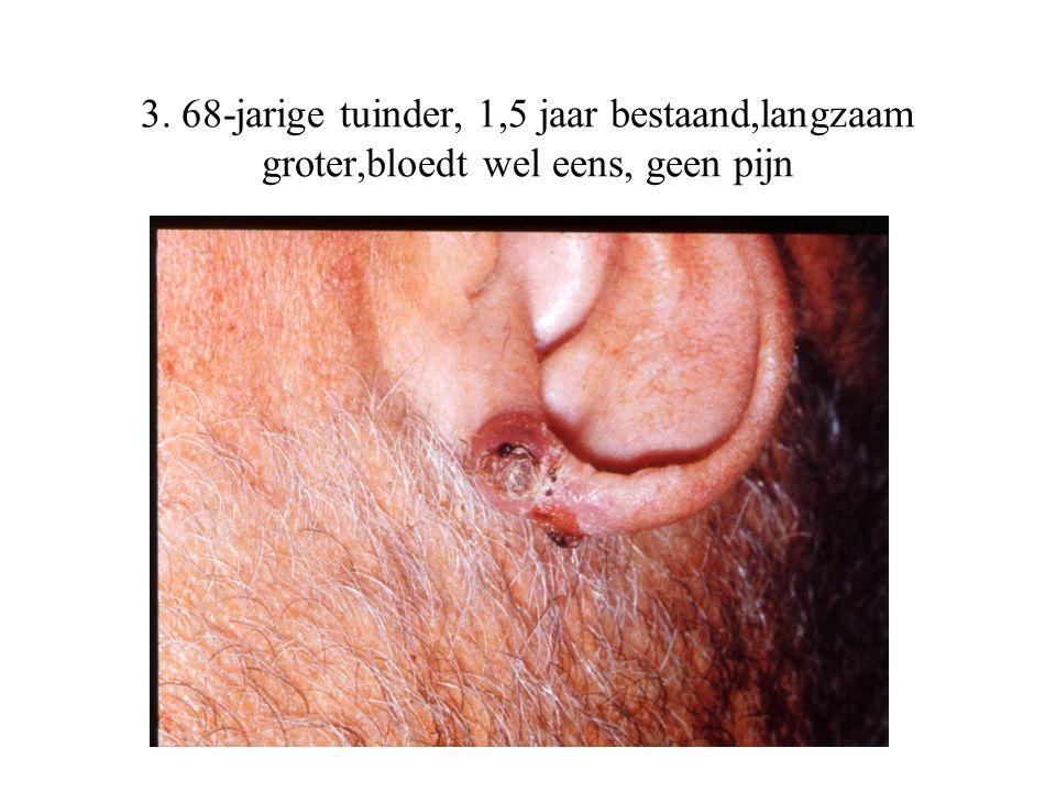 3. 68-jarige tuinder, 1,5 jaar bestaand,langzaam groter,bloedt wel eens, geen pijn