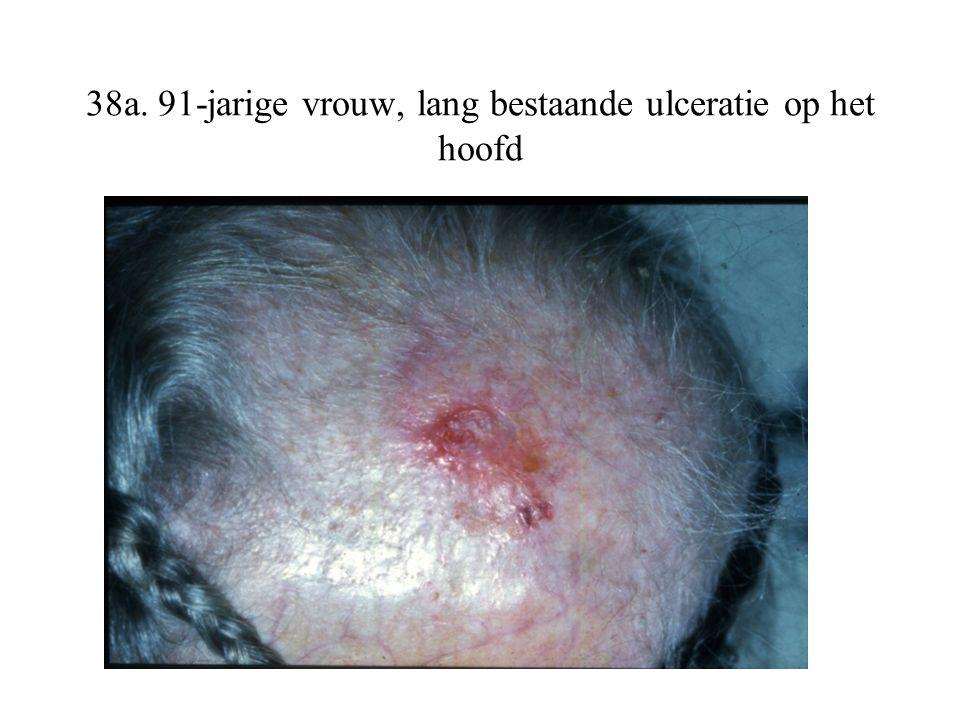 38a. 91-jarige vrouw, lang bestaande ulceratie op het hoofd