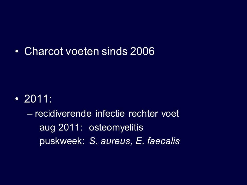 Charcot voeten sinds 2006 2011: –recidiverende infectie rechter voet aug 2011:osteomyelitis puskweek:S. aureus, E. faecalis