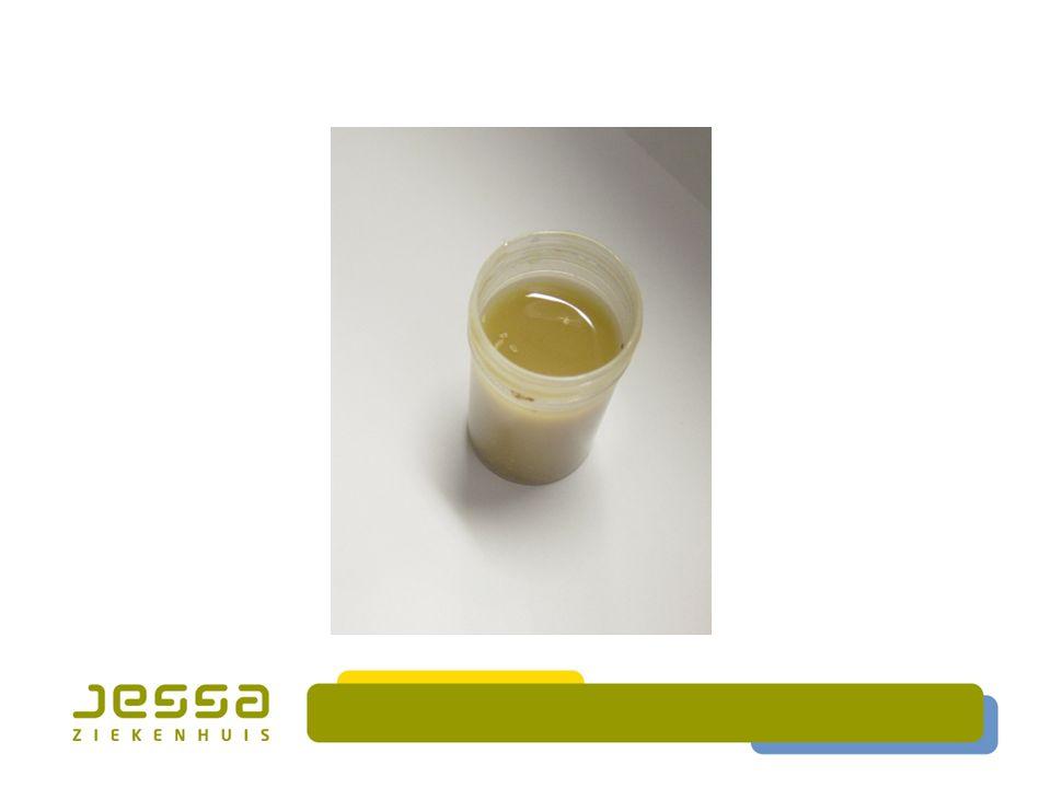  WBC pos  Steatocriet: 25 %  Alpha-1 antitrypsine < 1 mg/g  Kweek neg  Parasieten neg  Giardia lamblia Ag neg  Cryptosporidium neg