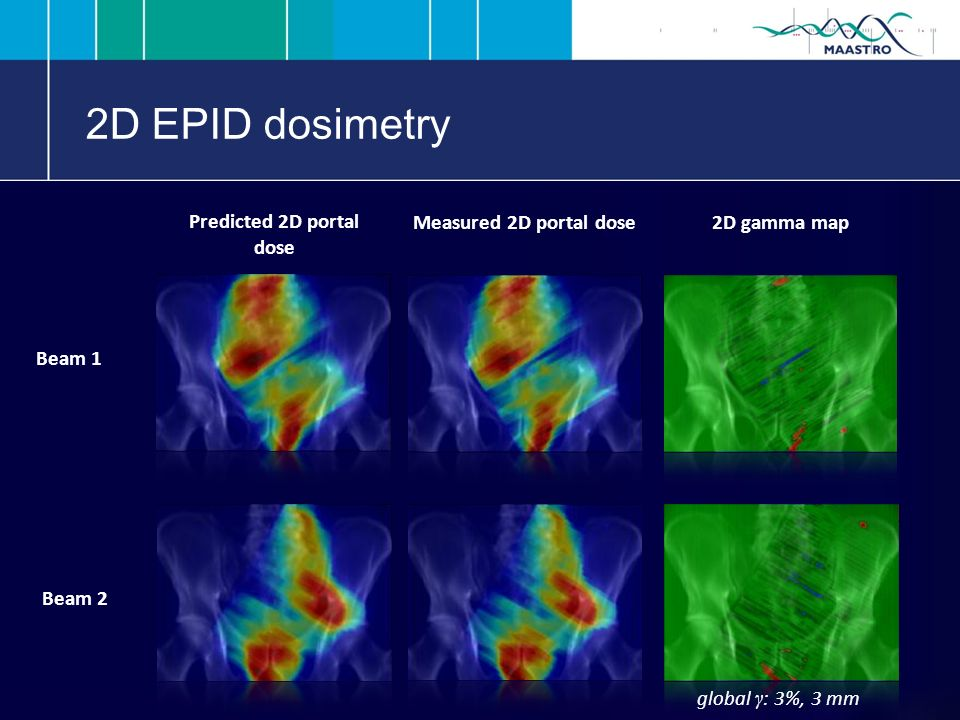 2D EPID dosimetry Predicted 2D portal dose Beam 1 Measured 2D portal dose 2D gamma map Beam 2 global γ : 3%, 3 mm