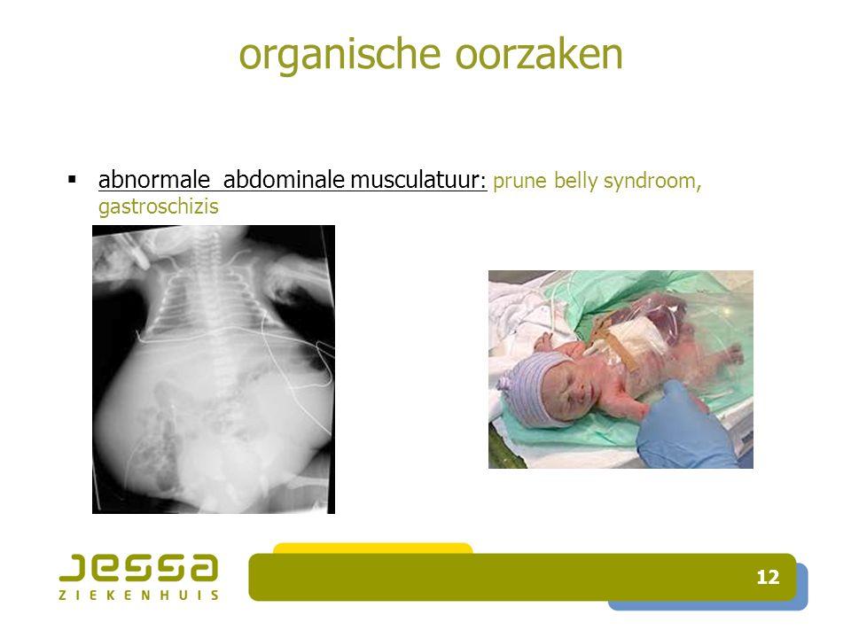 12 organische oorzaken  abnormale abdominale musculatuur : prune belly syndroom, gastroschizis