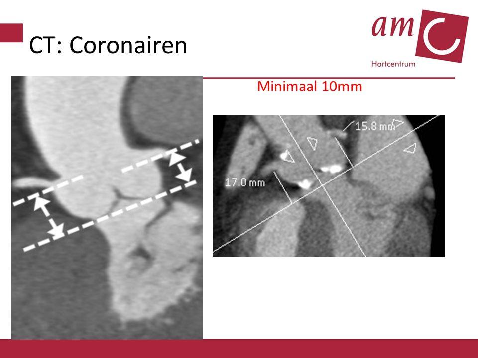 CT: Coronairen Minimaal 10mm