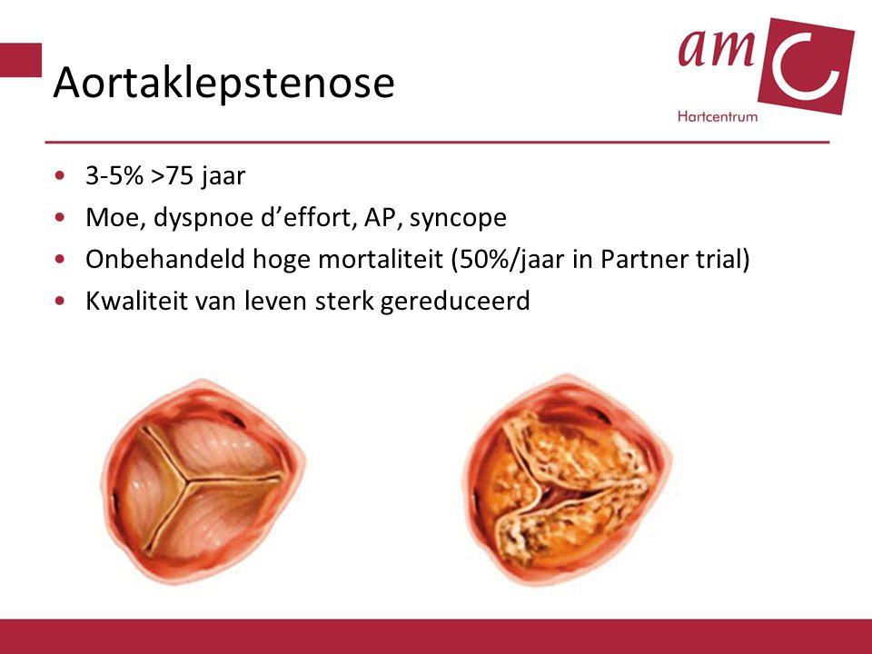 Aortaklepstenose 3-5% >75 jaar Moe, dyspnoe d'effort, AP, syncope Onbehandeld hoge mortaliteit (50%/jaar in Partner trial) Kwaliteit van leven sterk g