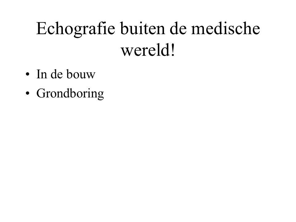 Internet site www.echografieprenataal.nl www.google.com www.umcn.nl/patient/ http://www2.caometalektro.nl/kennisweb/beproeving/ ultrasoon.htmlhttp://www2.caometalektro.nl/kennisweb/beproeving/ ultrasoon.html
