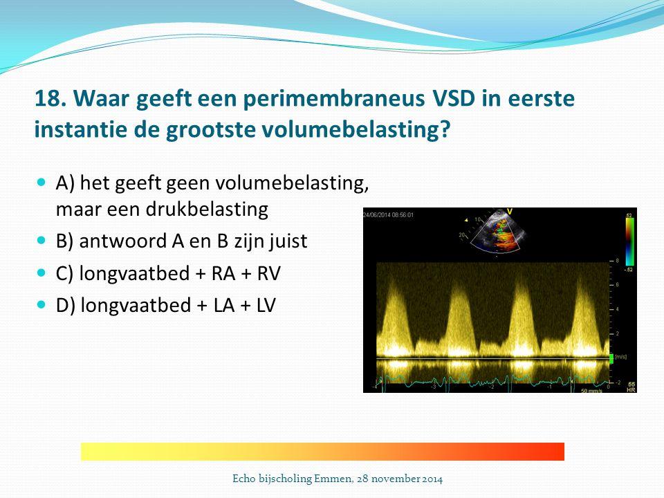 18.Waar geeft een perimembraneus VSD in eerste instantie de grootste volumebelasting.