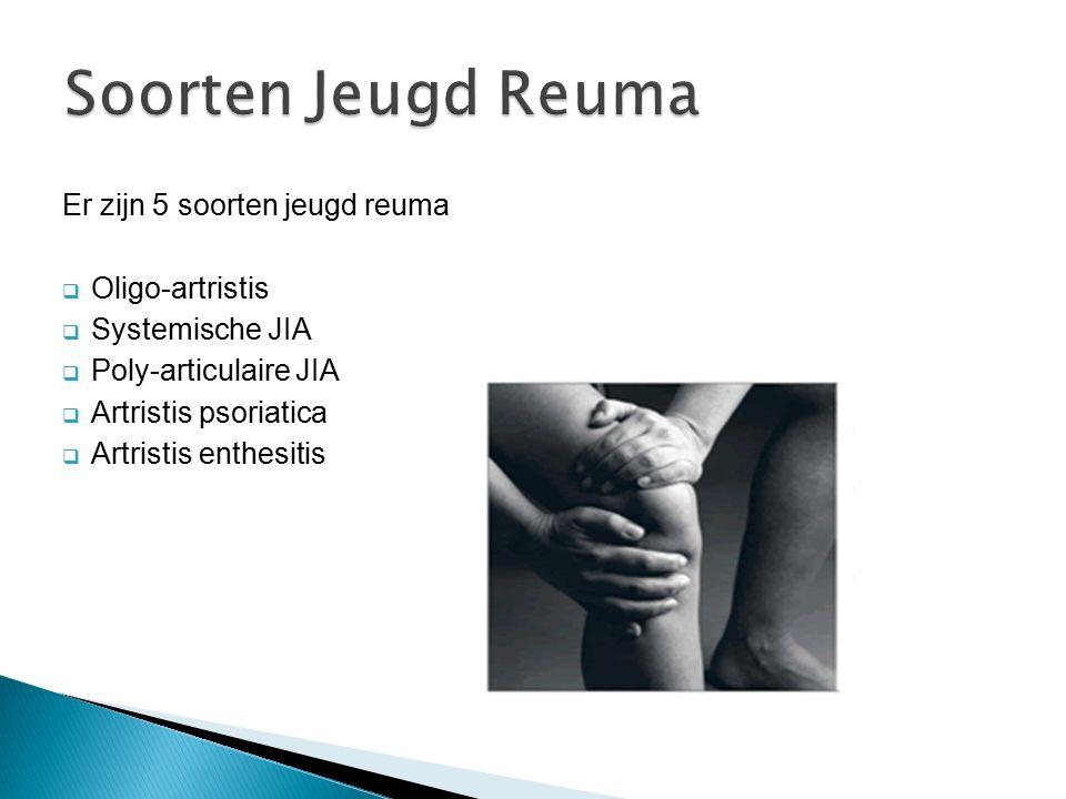 Er zijn 5 soorten jeugd reuma  Oligo-artristis  Systemische JIA  Poly-articulaire JIA  Artristis psoriatica  Artristis enthesitis