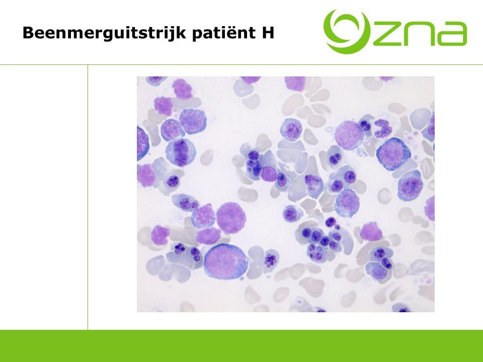 Casus patiënt W >Diagnose: Systemische lupus erythematosus >Behandeling: Methylprednisolon Antipsychotica