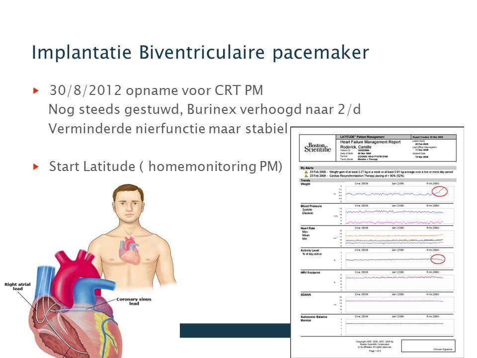 Implantatie Biventriculaire pacemaker 30/8/2012 opname voor CRT PM Nog steeds gestuwd, Burinex verhoogd naar 2/d Verminderde nierfunctie maar stabiel