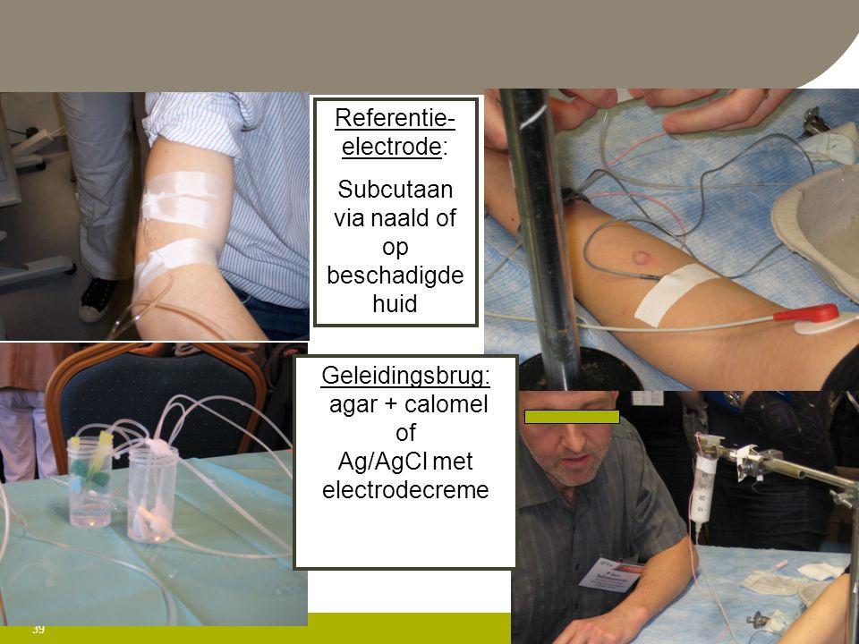 39 May 30, 2016 Referentie- electrode: Subcutaan via naald of op beschadigde huid Geleidingsbrug: agar + calomel of Ag/AgCl met electrodecreme