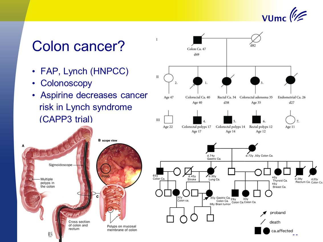 33 Colon cancer.