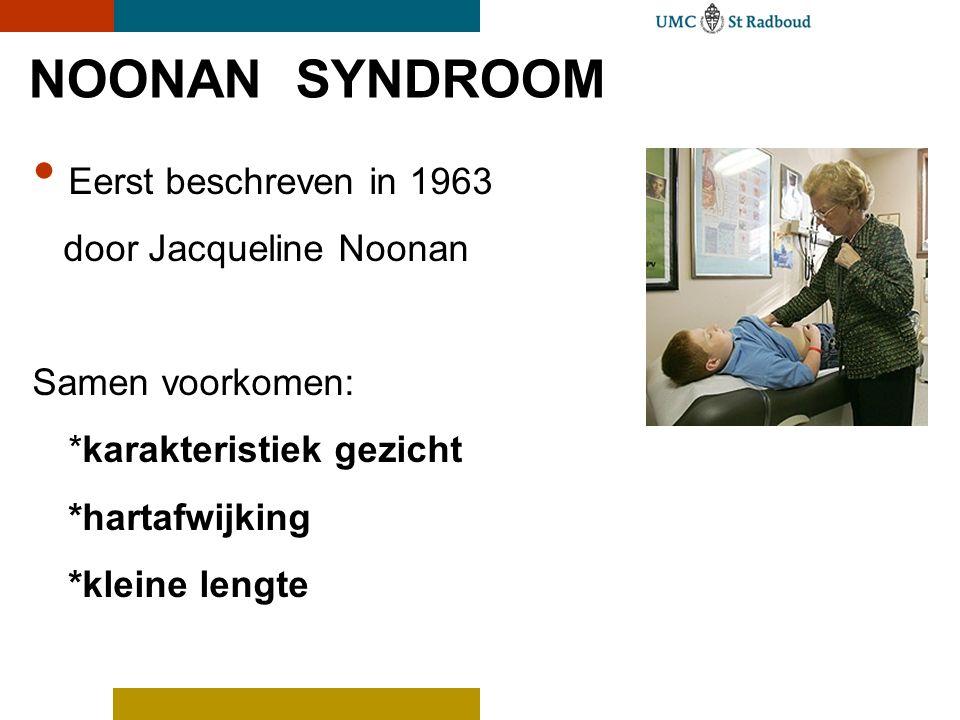 NOONAN SYNDROOM Eerst beschreven in 1963 door Jacqueline Noonan Samen voorkomen: *karakteristiek gezicht *hartafwijking *kleine lengte